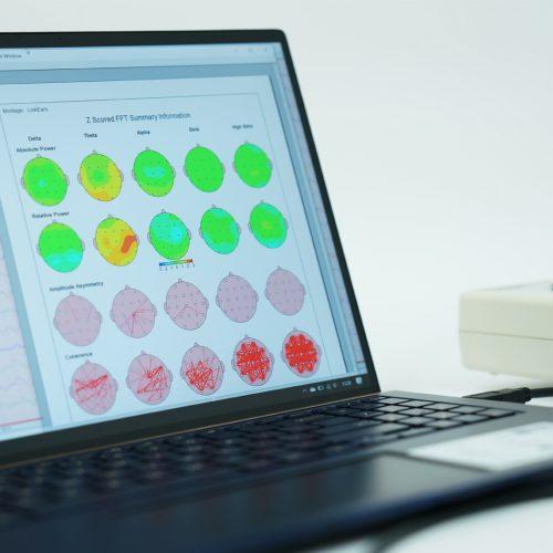 Mapowanie mózgu czyli ilościowe EEG